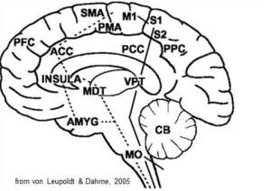 MDT brain